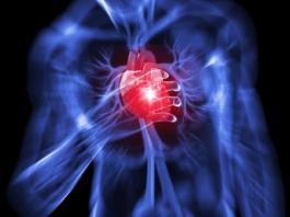 چگونه از صدمات سکته قلبی خود یا عزیزانمان جلوگیری کنیم؟